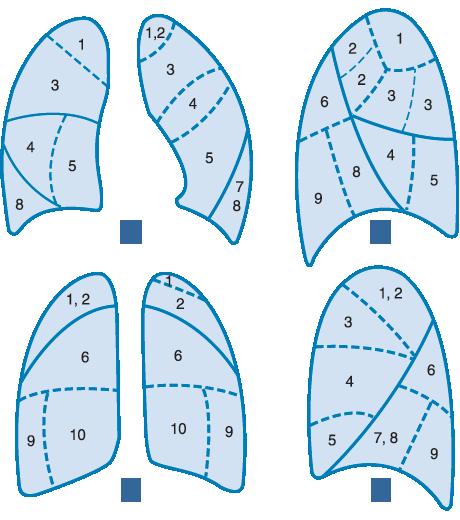 Anatomía Pulmonar (Segmentos) :: Clini-Data™